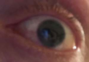 Image shows a close up view of my eye, which has no visible iris around the pupil