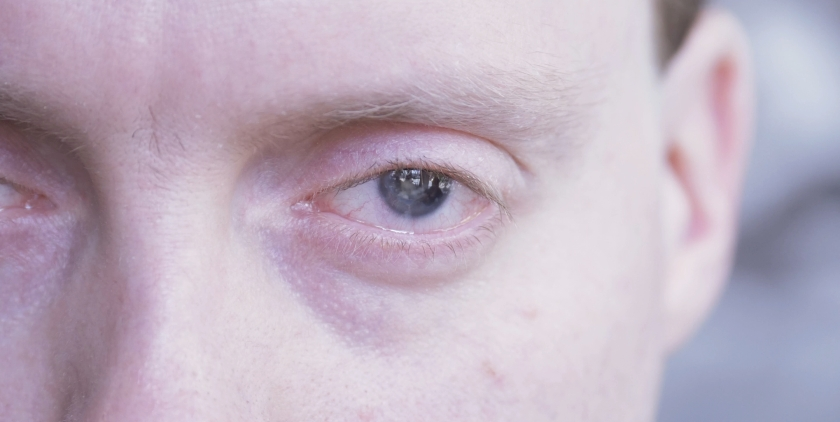 Close-up of Glen's eye, which doesn't have an iris, the coloured circle, around the pupil. The students filming Glen can be seen in the reflection in his pupil.